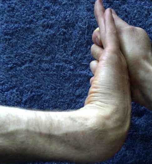 Wrist and forearm : adducting twist